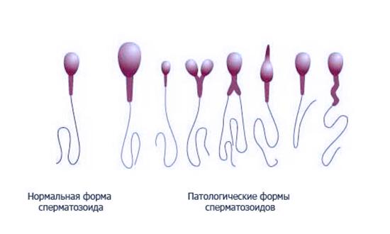 Отделение из спермы здоровых сперматозоидов