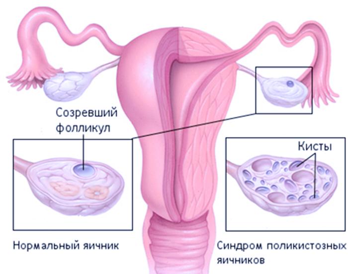 ЭКО при поликистозе яичников: Причины возникновение, Лечение и Диагностика