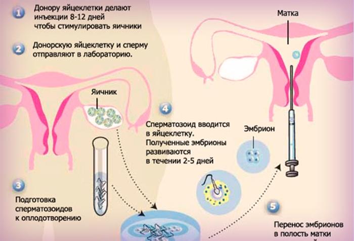 donorskaya-sperma-kak-ona-hranitsya