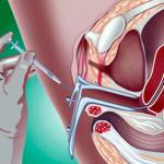 Как вести после подсадки эмбрионов