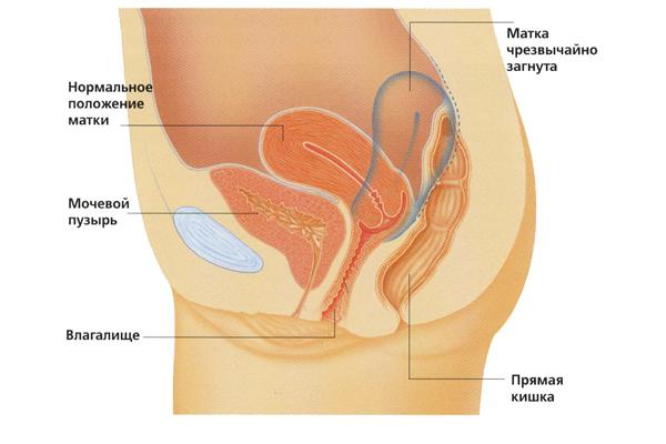 Как быстро забеременеть при загибе матки кзади и кпереди: оптимальные позы для секса