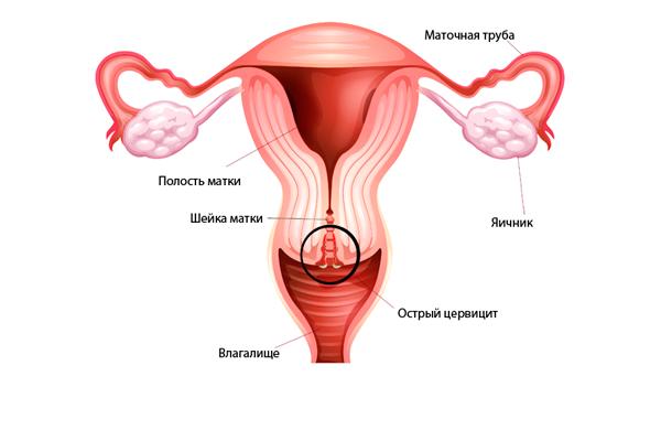 Лечение цервицита шейки матки препараты