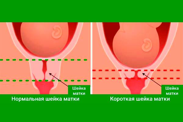 Почему у беременных короткая шейка матки 88