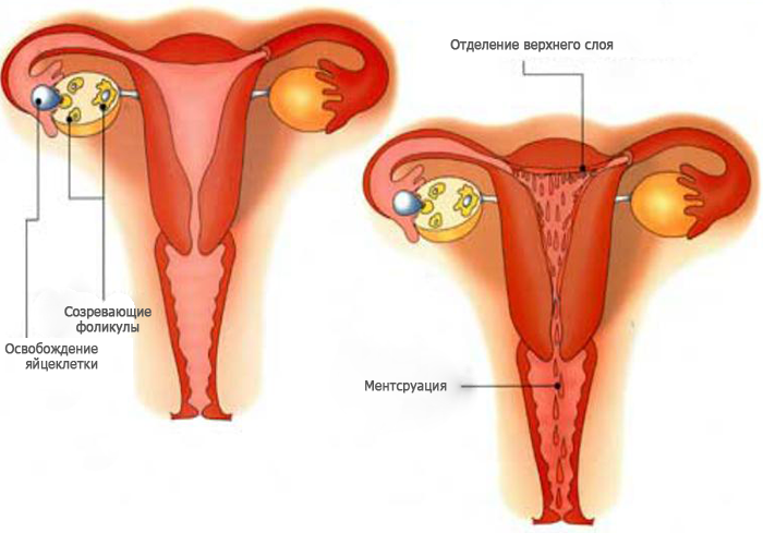 Схема поражения при аменореи