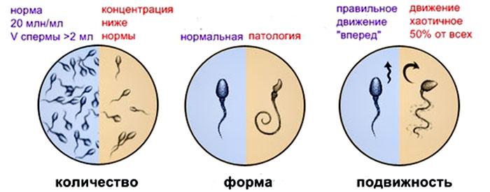 Нарушение сперматогинеза у мужчин