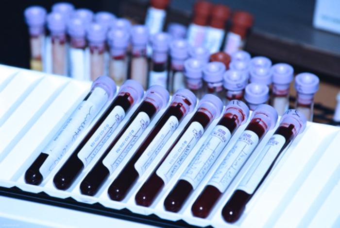 Забор крови на определение беремености