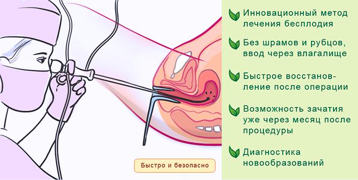 Преимущества проведения процедуры - Гистероскопия при ЭКО