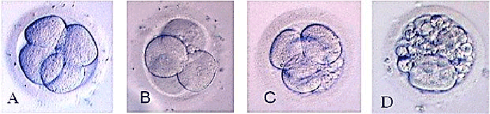 Классы Эмбрионов ЭКО перед подсадкой