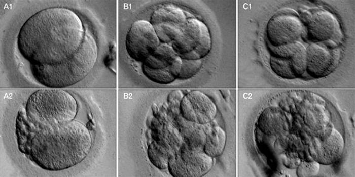 Классы Эмбрионов ЭКО