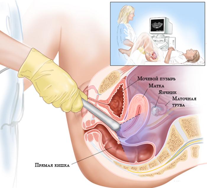 Проверка на менструация после ЭКО