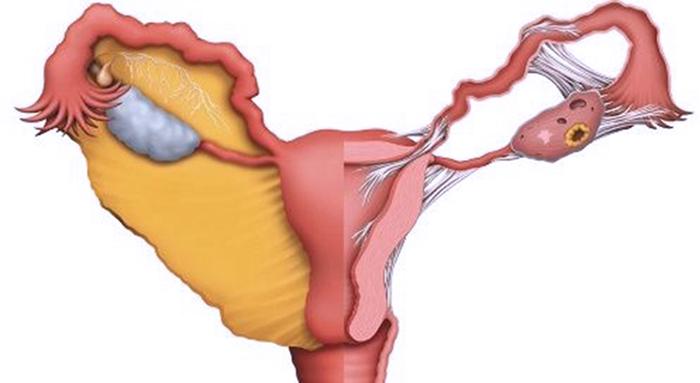 Причины бесплодия у женщин: Патологии, Виды и Причины бесплодия