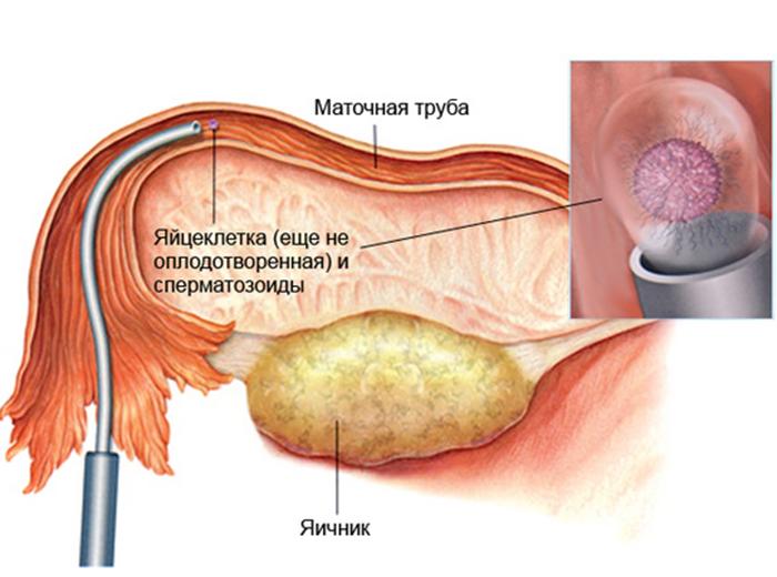 Как проходит подсадка оплодотворенного эмбриона в полость матки при длинном протоколе
