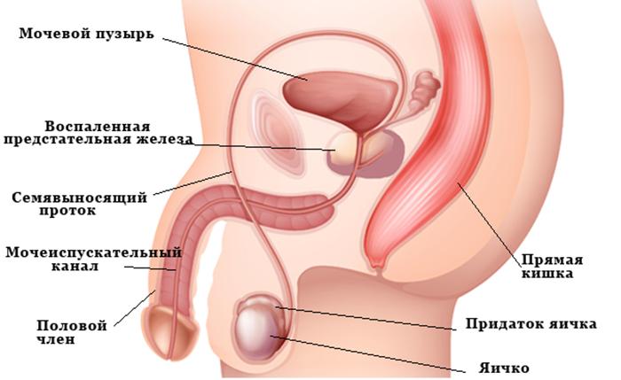 Схема симптомов простатита
