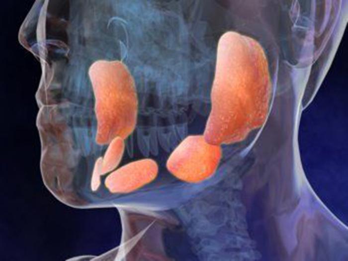 Воспаление желез в гортани при паротите
