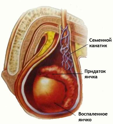 Осложнение при паротите - воспаление яичек