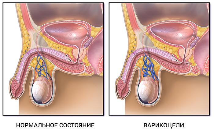 Что происходит после операции варикоцеле