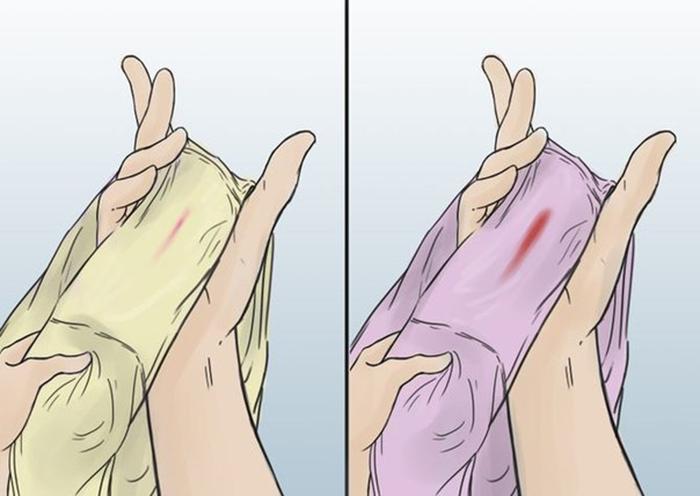 Кровянистые выделения после переноса эмрионов