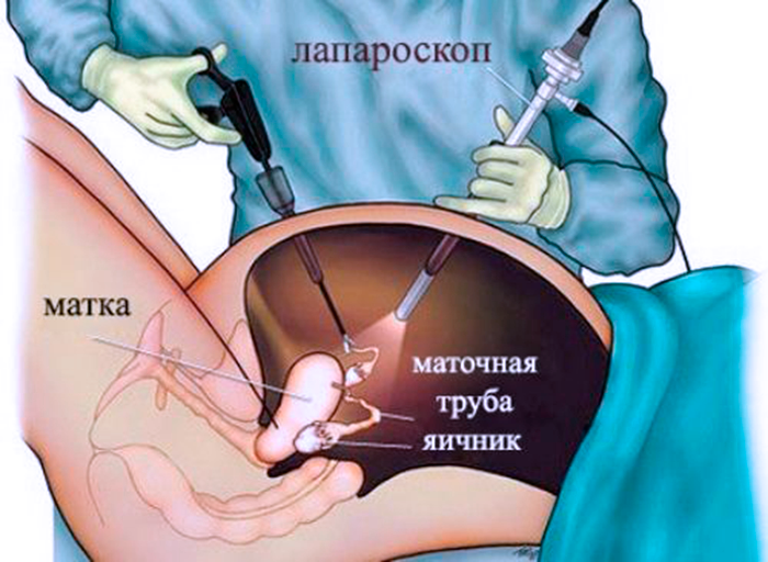 Проведения лапороскопической операции при Кисты Яичников