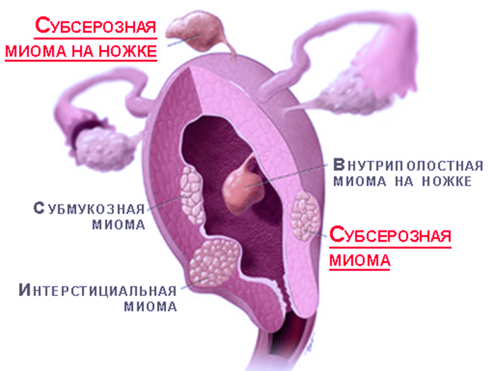 Виды миомы матки при провидении лапороскопической операции