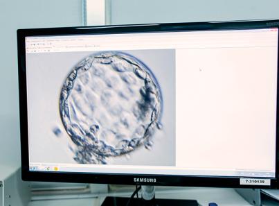 Отображение на мониторе эмбриона через микроскоп