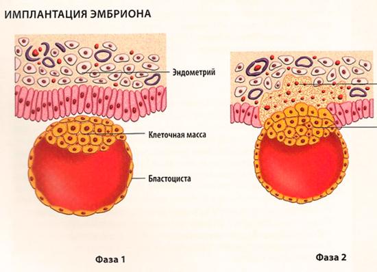 Как проходит имплантация при ЭКО