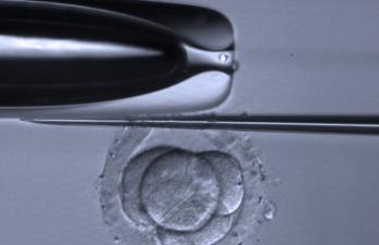 Хетчинг эмбрионов при эко