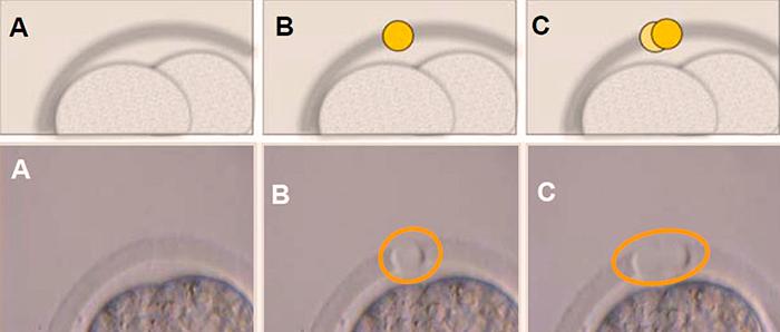 Как проходит Хетчинг эмбрионов при ЭКО