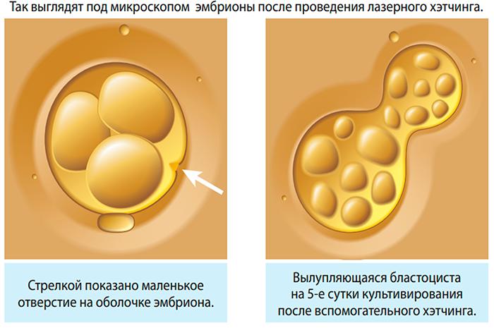 Вид эмбриона после проведения Хетчинга