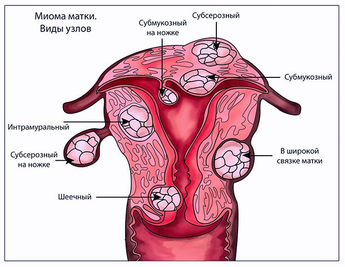 Виды узлов при миоме матки