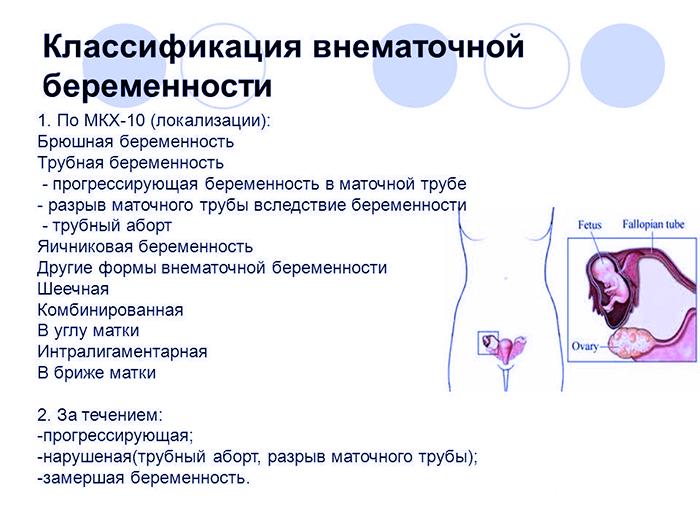 Классификация внематочной беремености