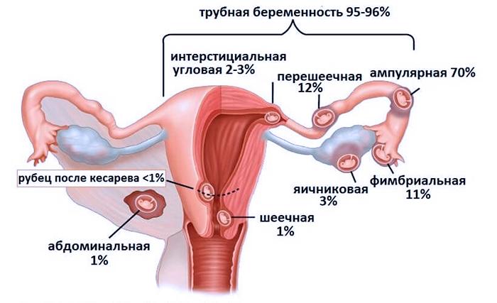 Соотношение остановки плода и в полости матке