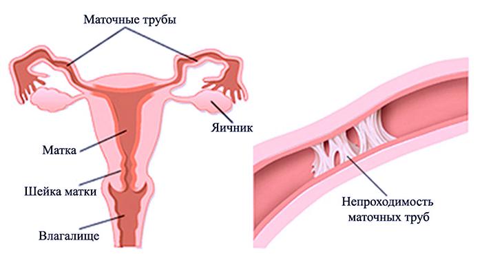 Как выглядит непроходимость маточных труб