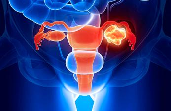 туберкулез матки как признак бесплодия