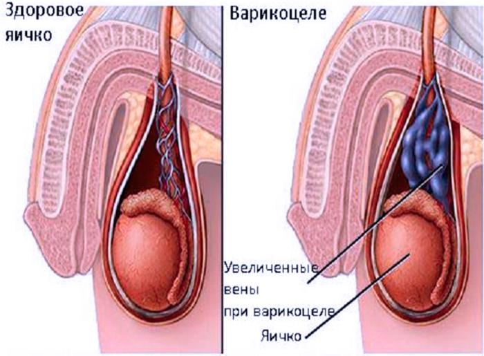 Проявление варикоцлей и отличие от нормы