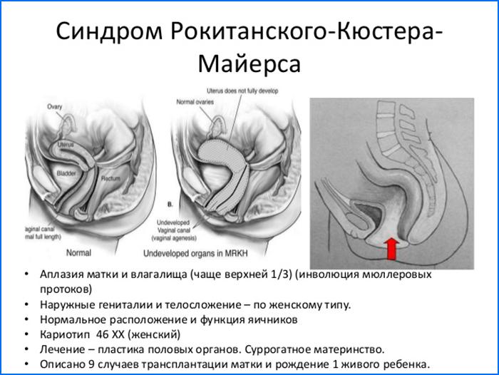 Синдром Рокитанского-Кюстера-Майерса