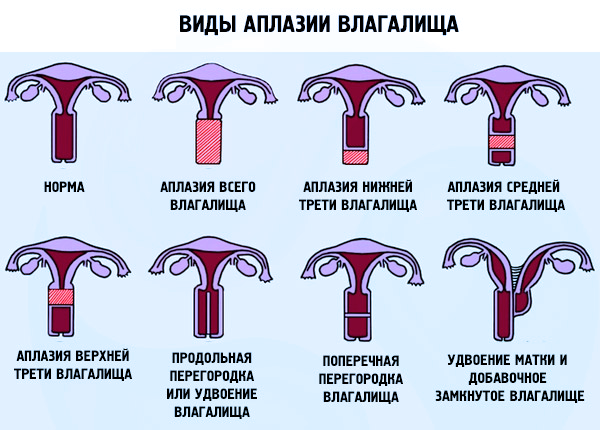 Виды проявления Аплазии матки