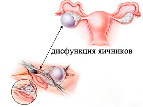 Оперативное вмешательство при дисфункции яичников