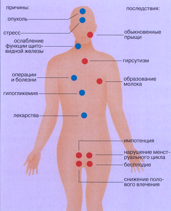 Причины проявления Гиперпролактинемии у женщин