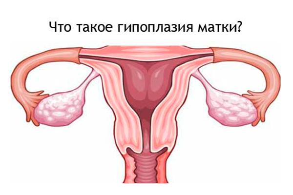 Гипоплазия матки - один из диагнозов, по которому естественной беременности быть не может