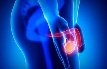 Орхит – воспаление яичек у мужчин