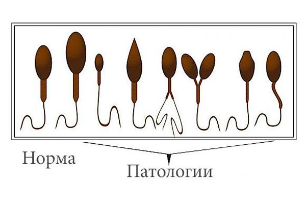 Норма и патологии строения сперматозоидов у мужчины