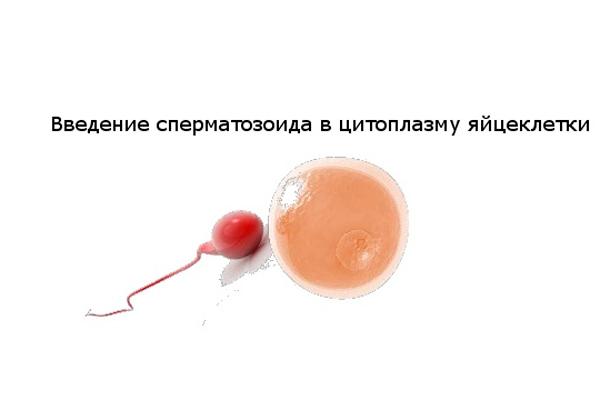 Процедура введения сперматозоида в цитоплазму яйцеклетки