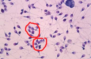 Агрегация сперматозоидов: что это и чем грозит