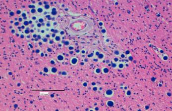 Амилоидные и липоидные тельца в спермограмме
