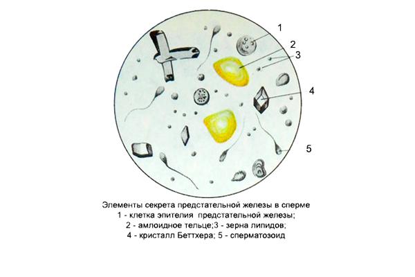 Липоидные тельца в сперме