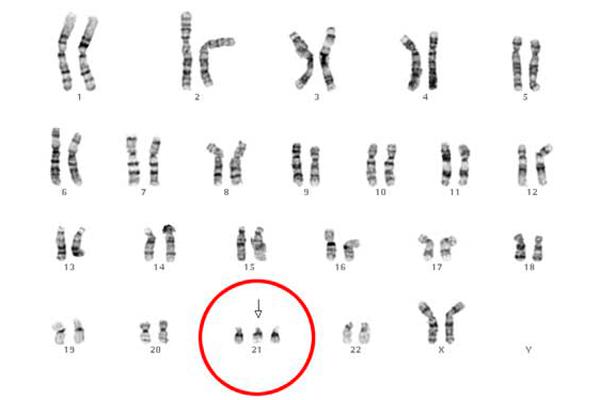 Патология хромосом, как причина неудачного ЭКО