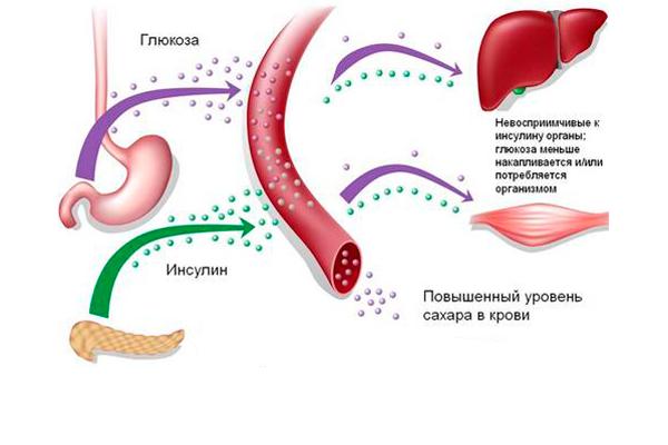 Сахарный диабет, как одна из причин появления гиперкератоза