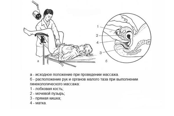 Гинекологический массаж для устранения загиба матки