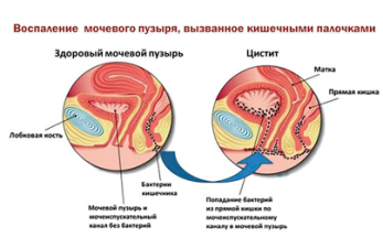 Лечение цистита во время беременности на разных сроках