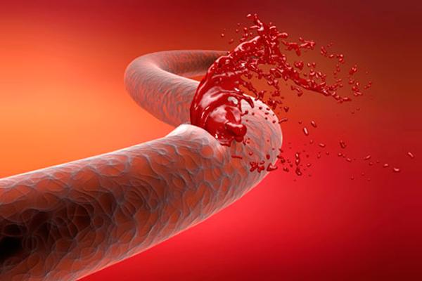Применение лапароскопии при гемофилии